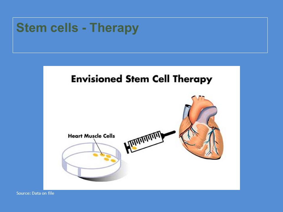 Stem cells - Therapy Source: Data on file