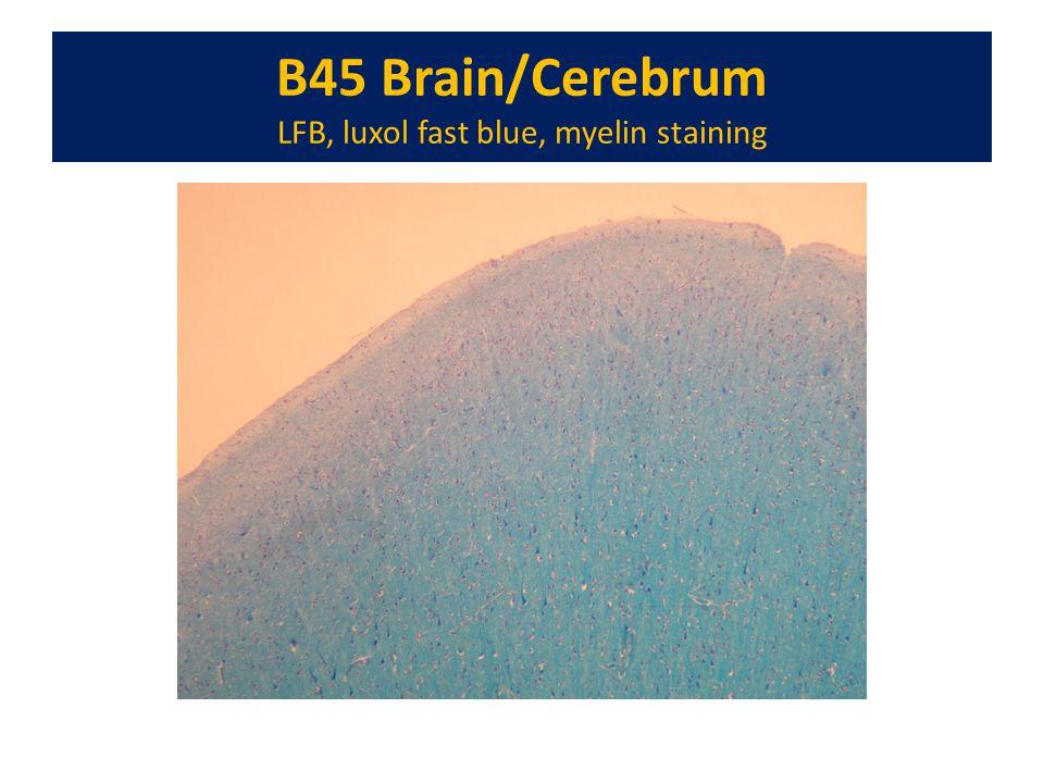 B45 Brain/Cerebrum LFB, luxol fast blue, myelin staining