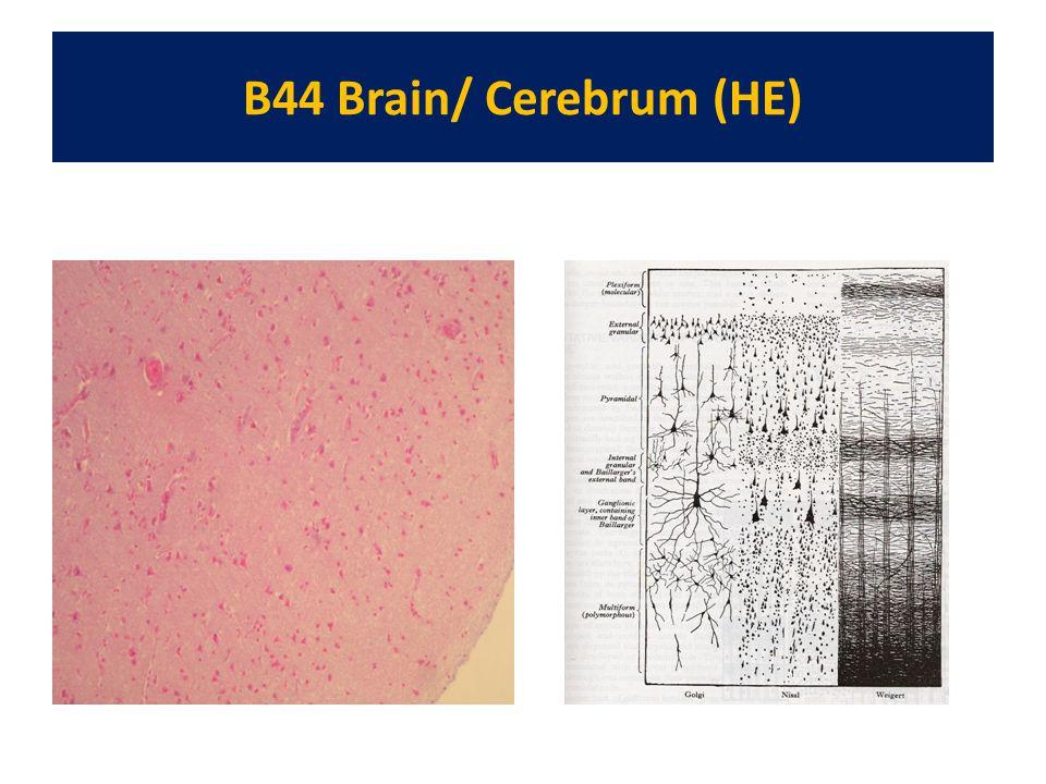 B44 Brain/ Cerebrum (HE)