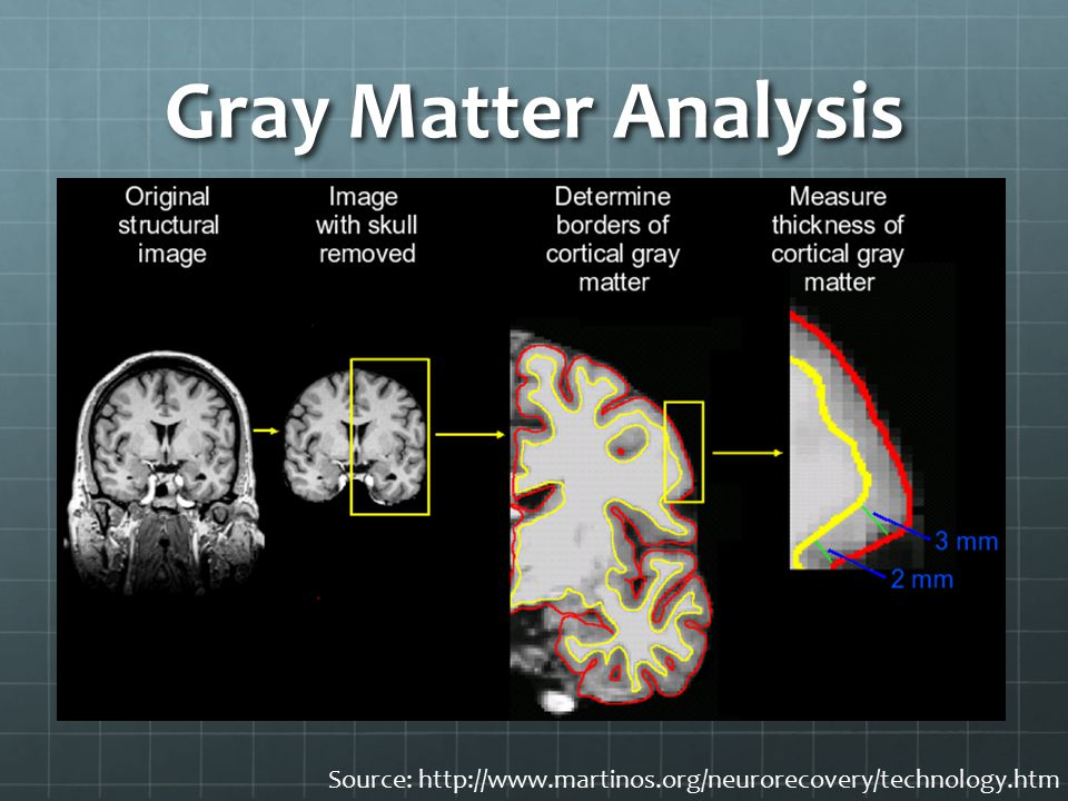 Gray Matter Analysis