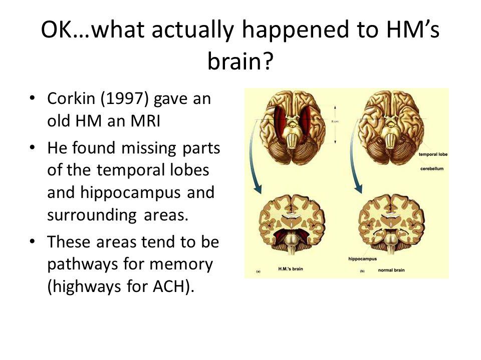 OK…what actually happened to HM's brain