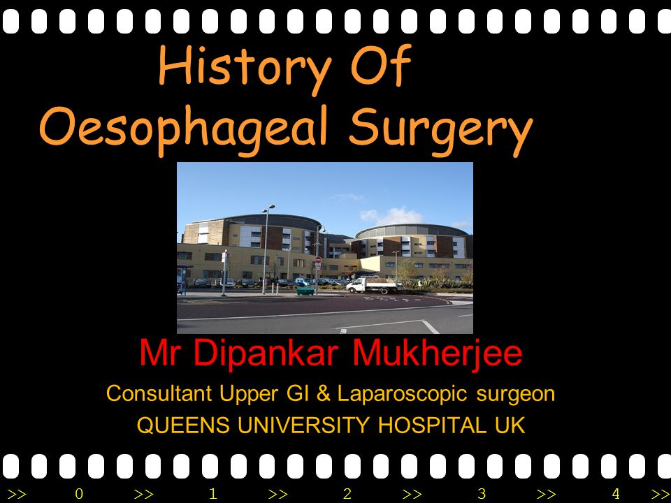 History Of Oesophageal Surgery
