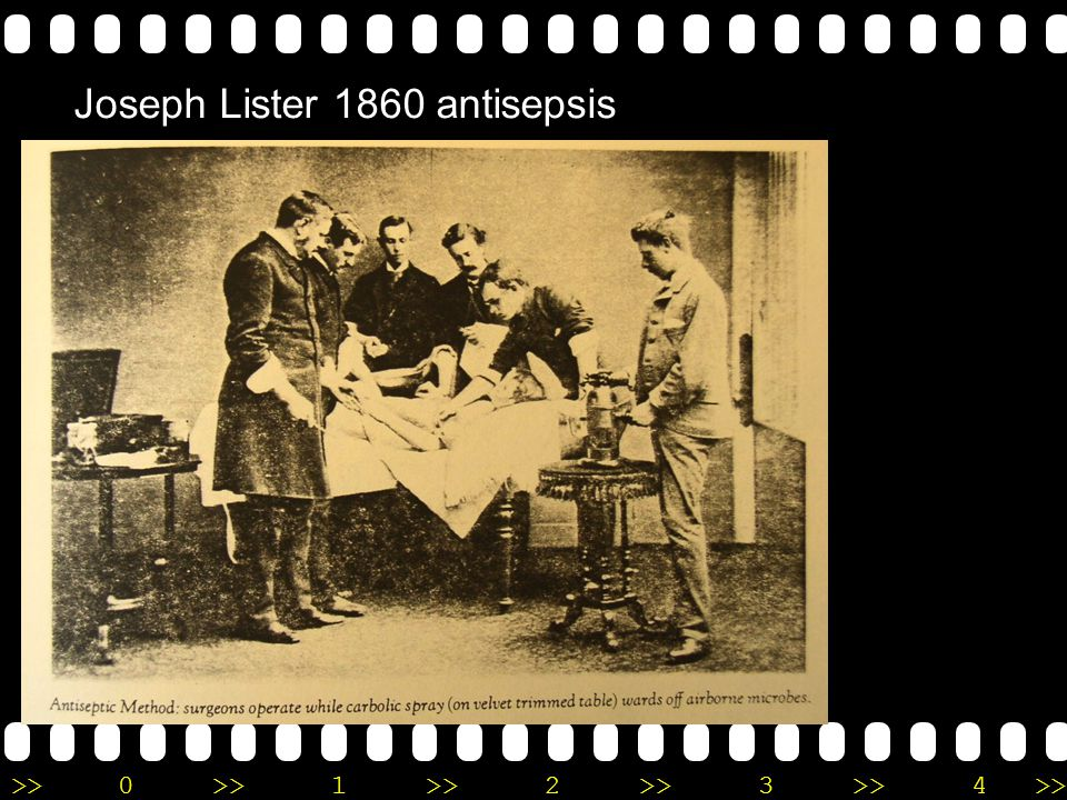 Joseph Lister 1860 antisepsis