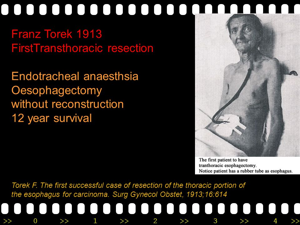 FirstTransthoracic resection Endotracheal anaesthsia Oesophagectomy