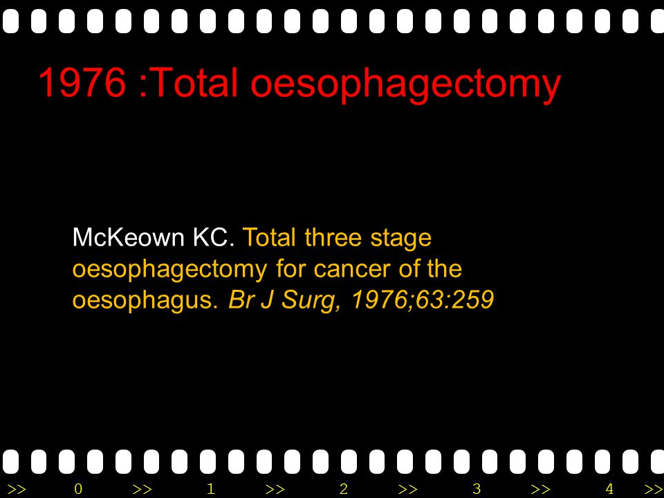 1976 :Total oesophagectomy