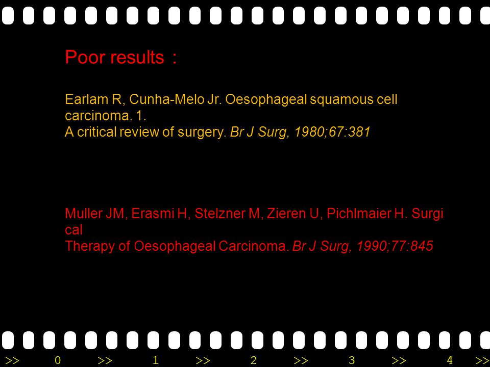 Poor results : Earlam R, Cunha-Melo Jr. Oesophageal squamous cell carcinoma. 1. A critical review of surgery. Br J Surg, 1980;67:381.