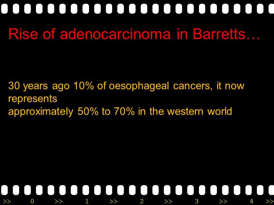 Rise of adenocarcinoma in Barretts…