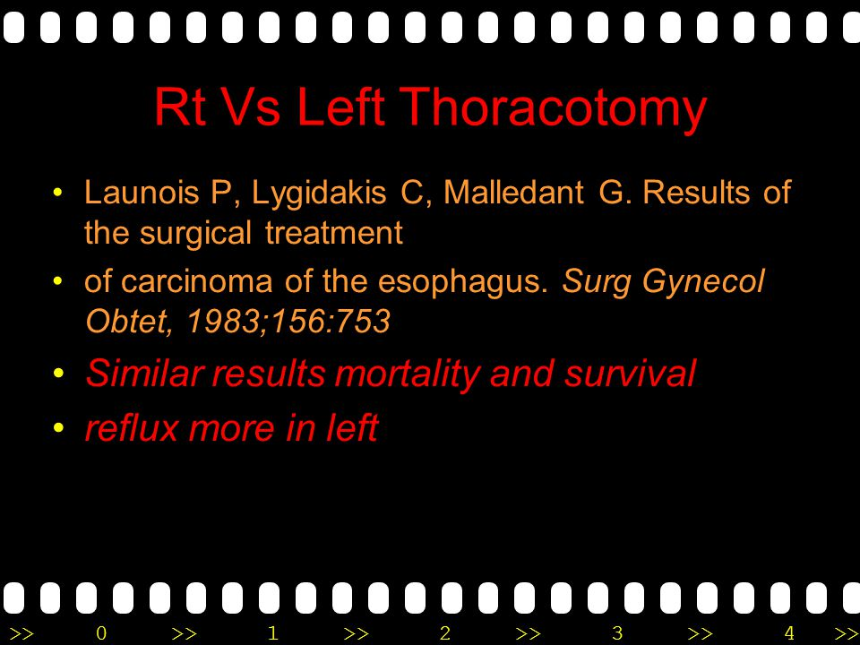 Rt Vs Left Thoracotomy Similar results mortality and survival