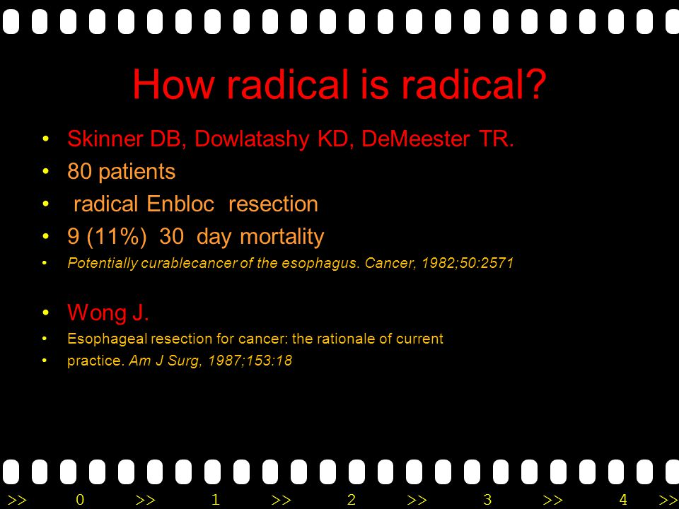 How radical is radical Skinner DB, Dowlatashy KD, DeMeester TR.