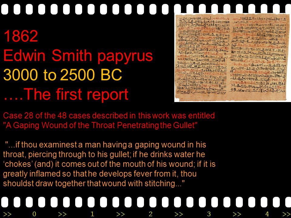 Edwin Smith papyrus 3000 to 2500 BC ….The first report