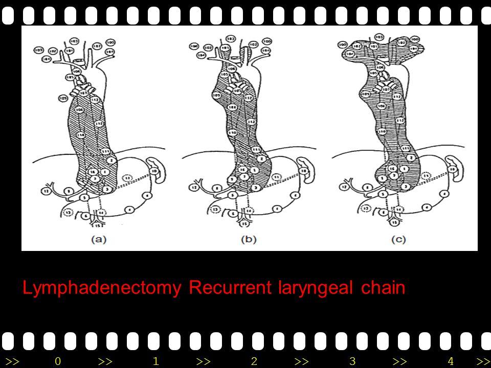 Lymphadenectomy Recurrent laryngeal chain