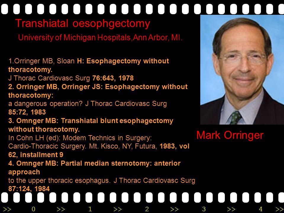 Transhiatal oesophgectomy
