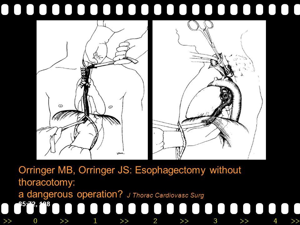 Orringer MB, Orringer JS: Esophagectomy without thoracotomy: