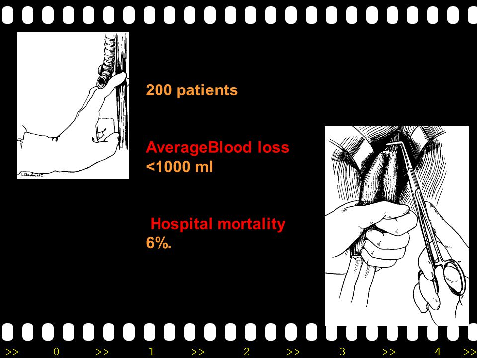 200 patients AverageBlood loss <1000 ml Hospital mortality 6%.