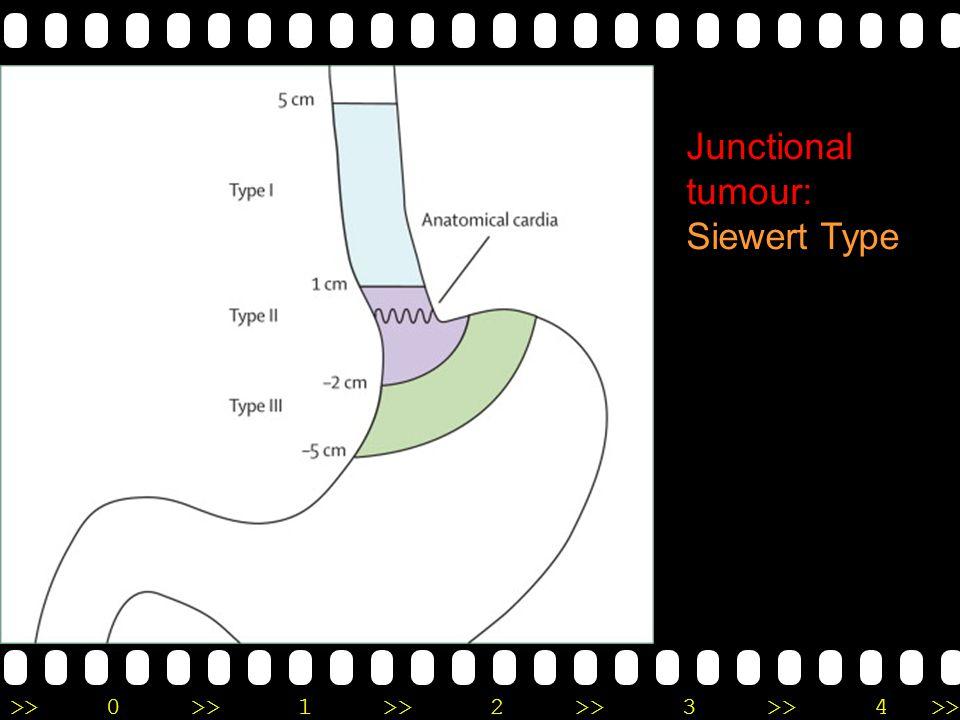 Junctional tumour: Siewert Type