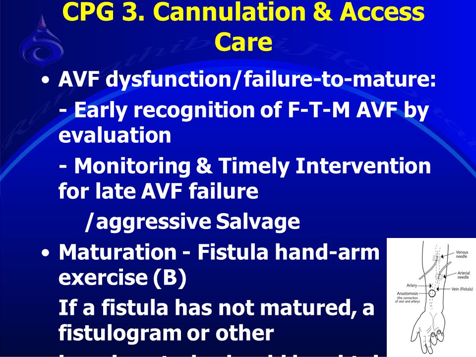 CPG 3. Cannulation & Access Care