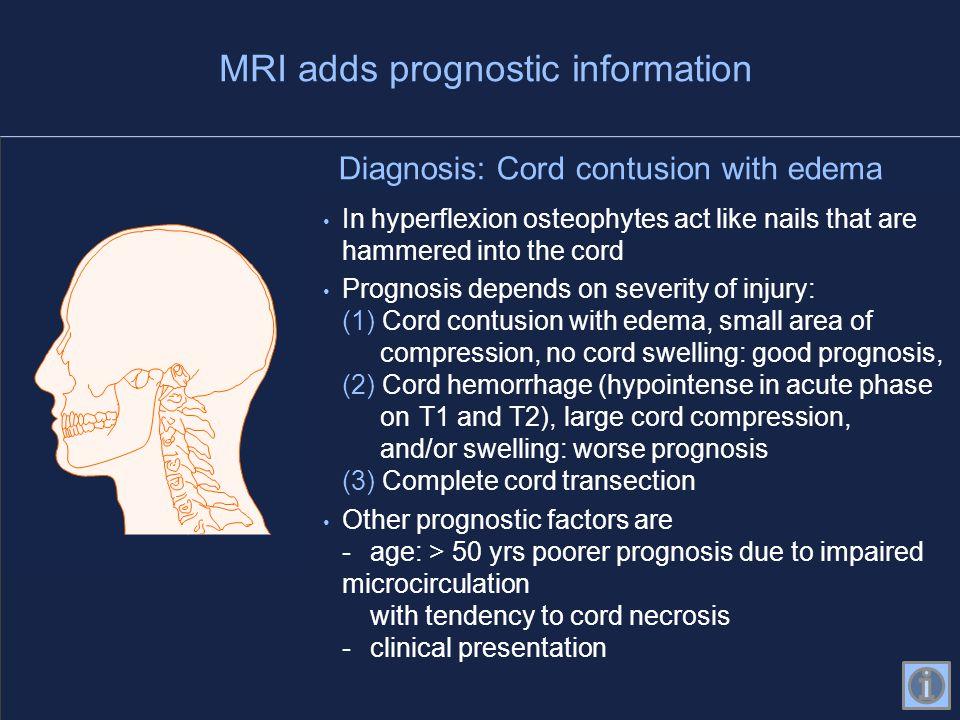MRI adds prognostic information