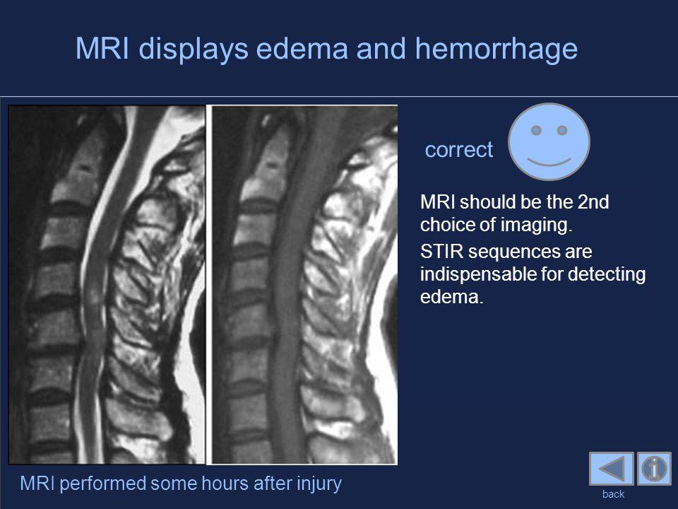 MRI displays edema and hemorrhage