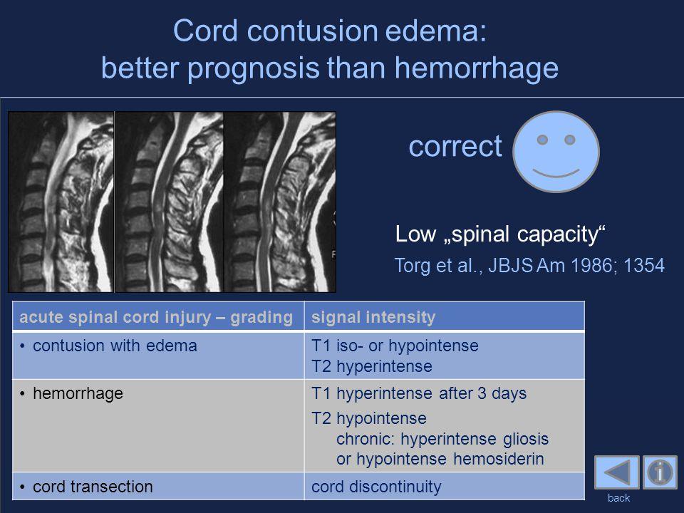 Cord contusion edema: better prognosis than hemorrhage