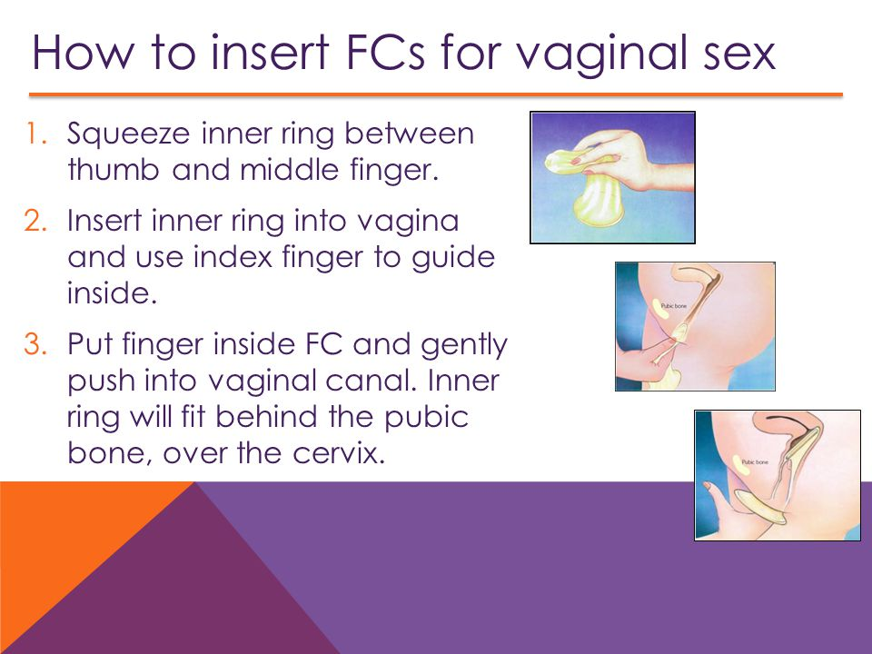 How to insert FCs for vaginal sex