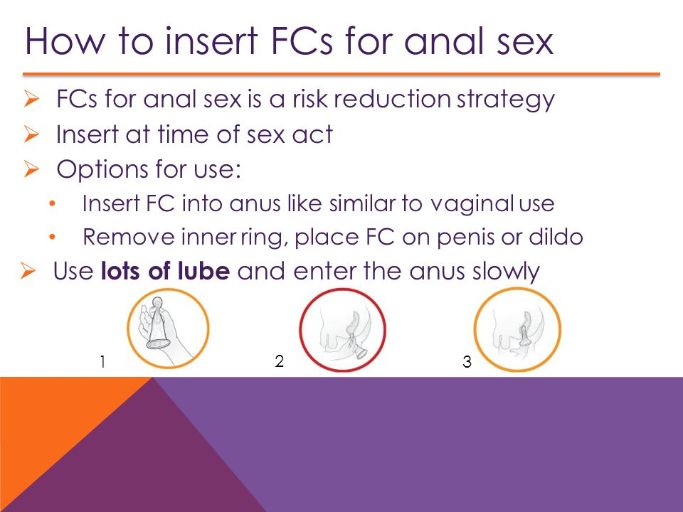 How to insert FCs for anal sex