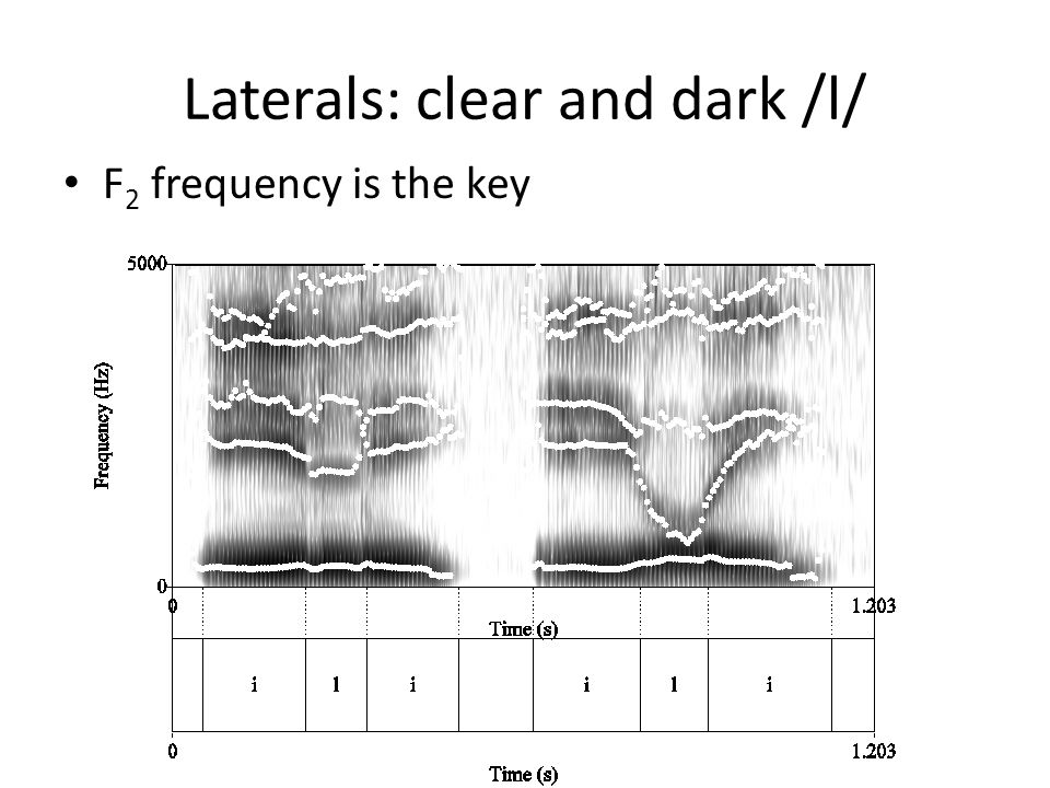 Laterals: clear and dark /l/