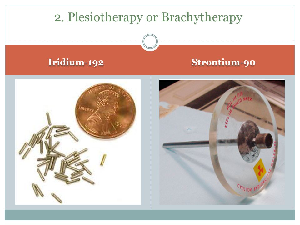 2. Plesiotherapy or Brachytherapy
