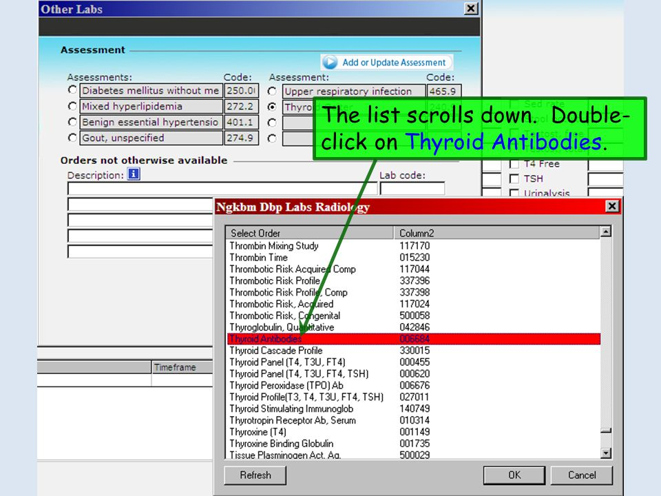 The list scrolls down. Double-click on Thyroid Antibodies.