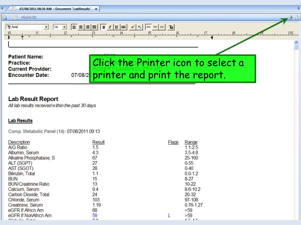 Click the Printer icon to select a printer and print the report.