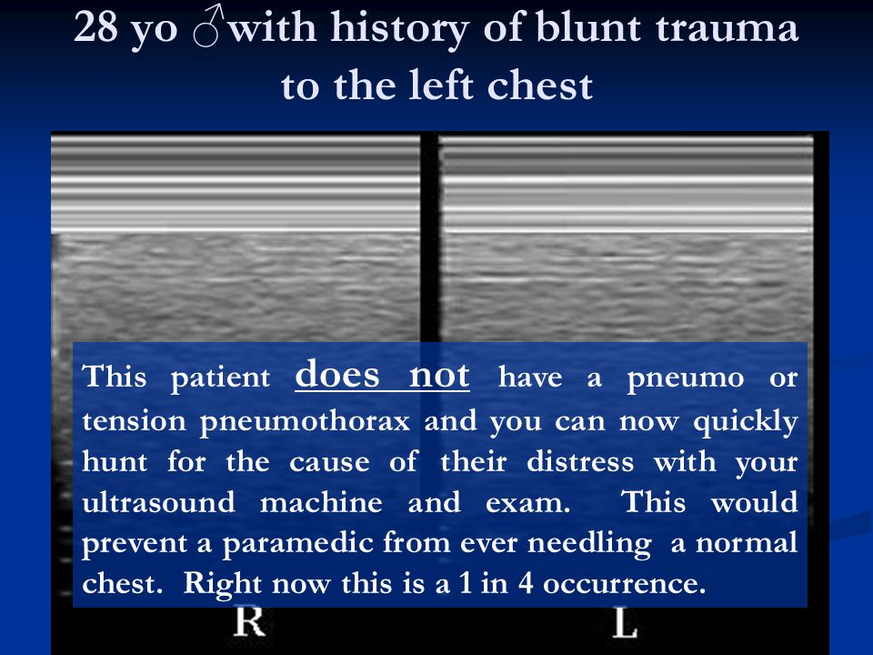 28 yo ♂with history of blunt trauma to the left chest
