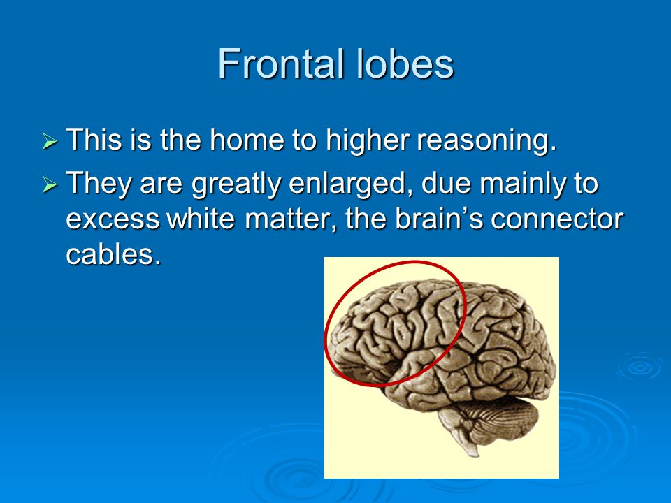 Frontal lobes This is the home to higher reasoning.