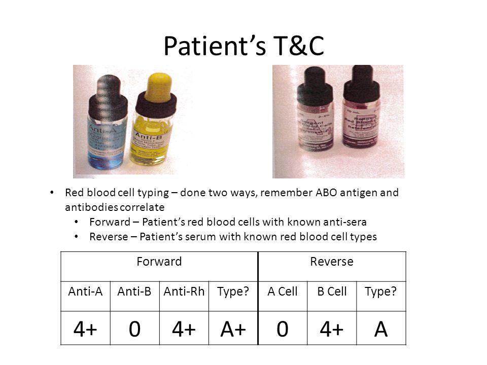 Patient's T&C 4+ A+ A Forward Reverse Anti-A Anti-B Anti-Rh Type