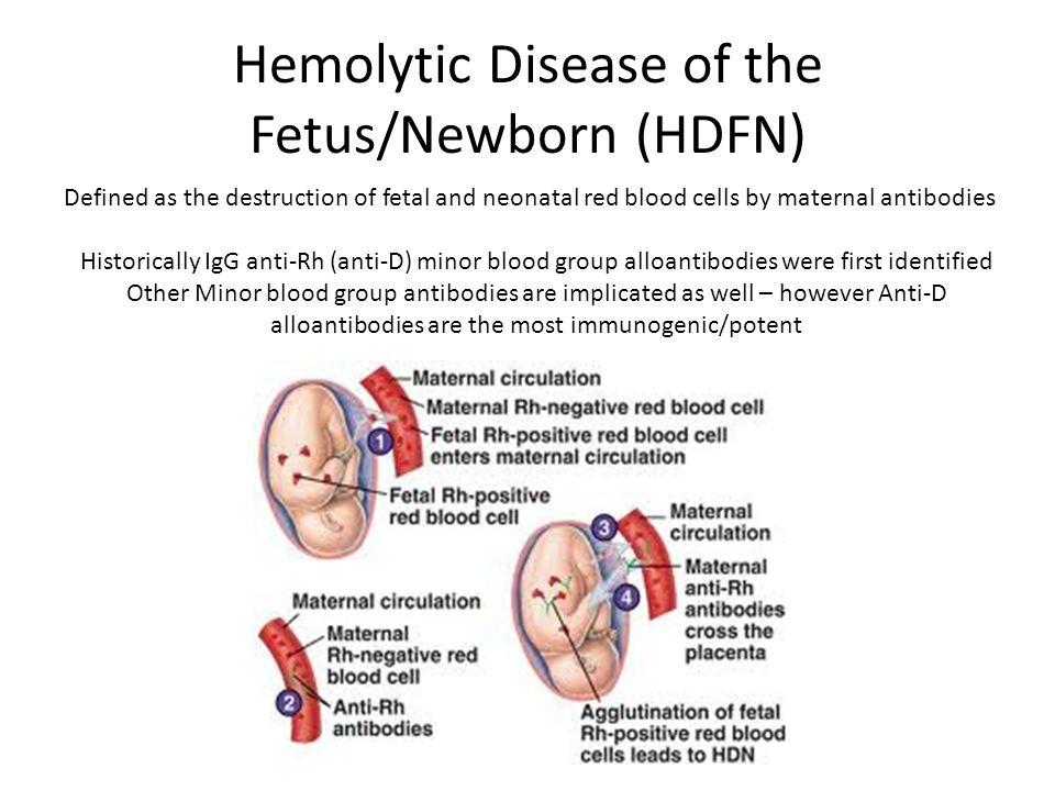 Hemolytic Disease of the Fetus/Newborn (HDFN)