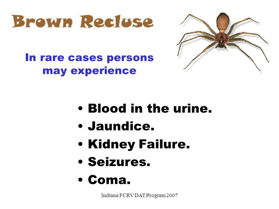 Brown Recluse Blood in the urine. Jaundice. Kidney Failure. Seizures.