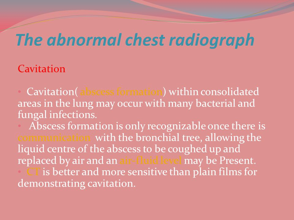 The abnormal chest radiograph