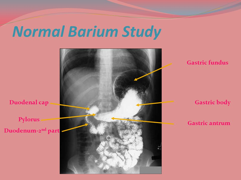 Normal Barium Study Gastric fundus Duodenal cap Gastric body Pylorus