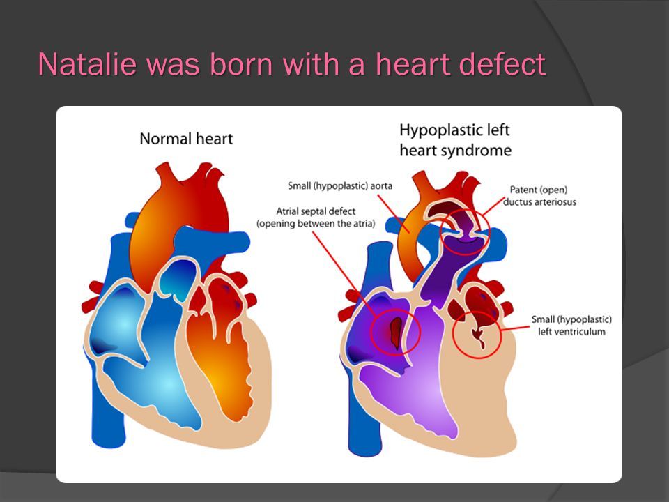 Natalie was born with a heart defect
