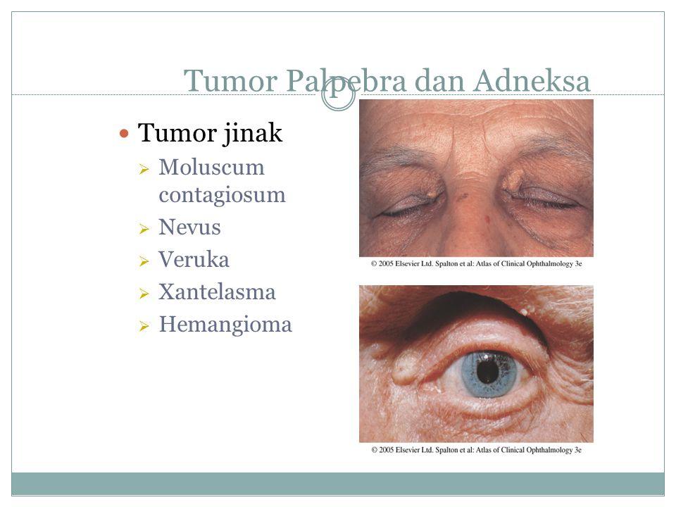 Tumor Palpebra dan Adneksa