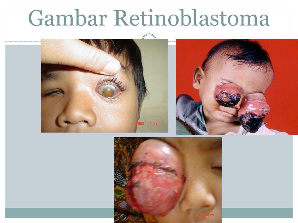 Gambar Retinoblastoma