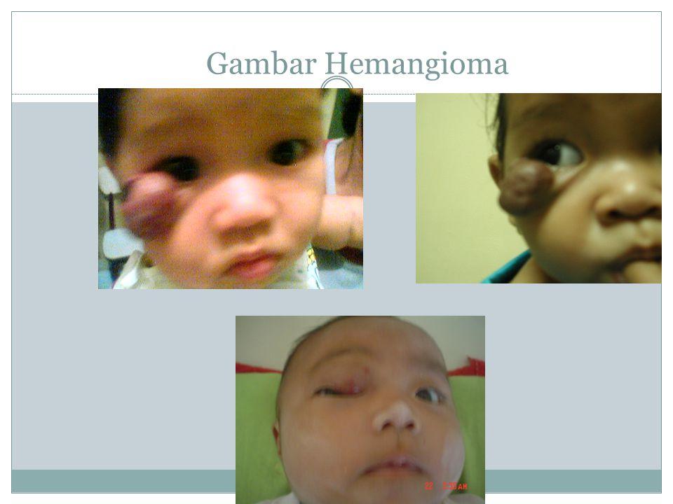 Gambar Hemangioma
