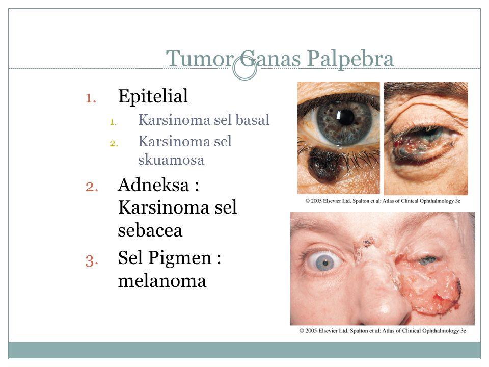 Tumor Ganas Palpebra Epitelial Adneksa : Karsinoma sel sebacea