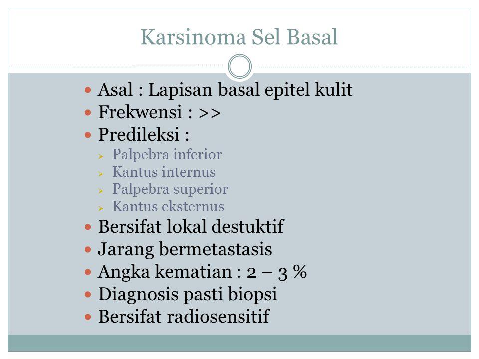 Karsinoma Sel Basal Asal : Lapisan basal epitel kulit