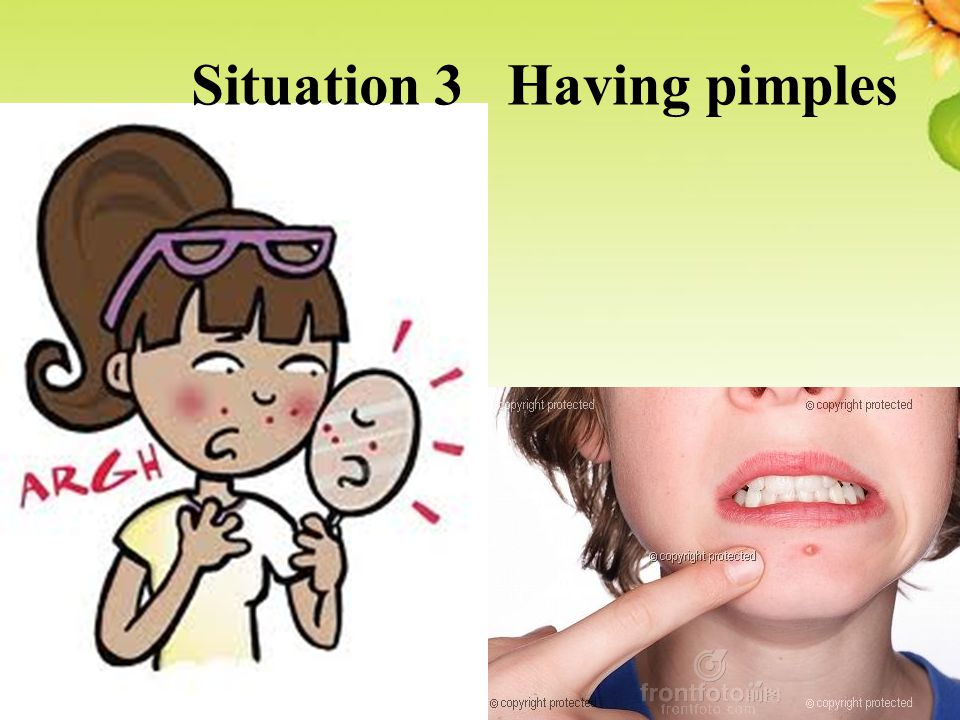Situation 3 Having pimples