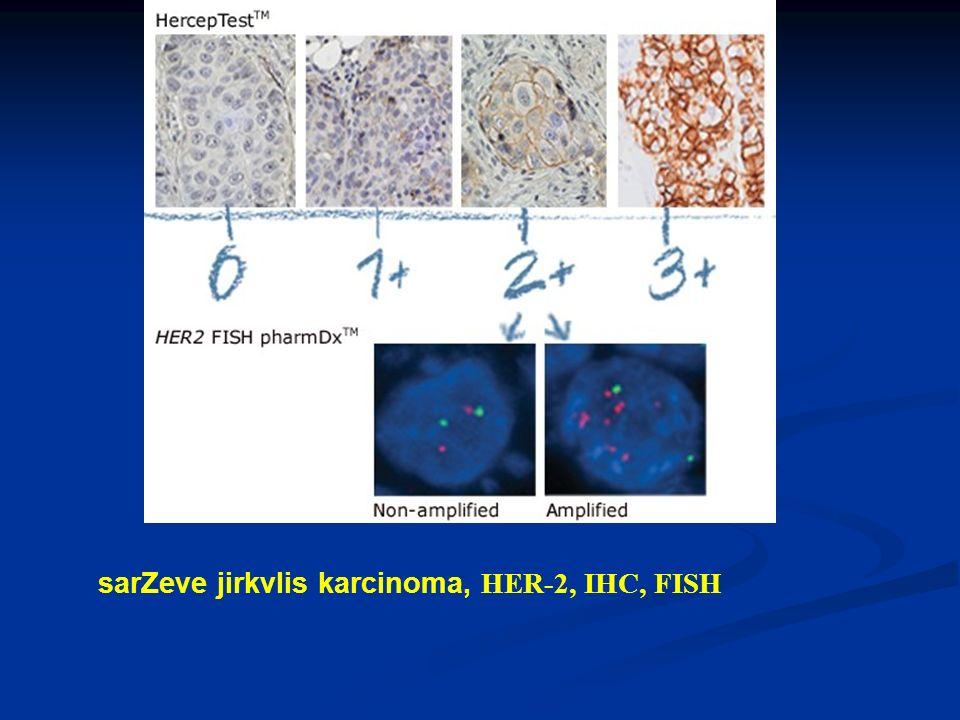 sarZeve jirkvlis karcinoma, HER-2, IHC, FISH