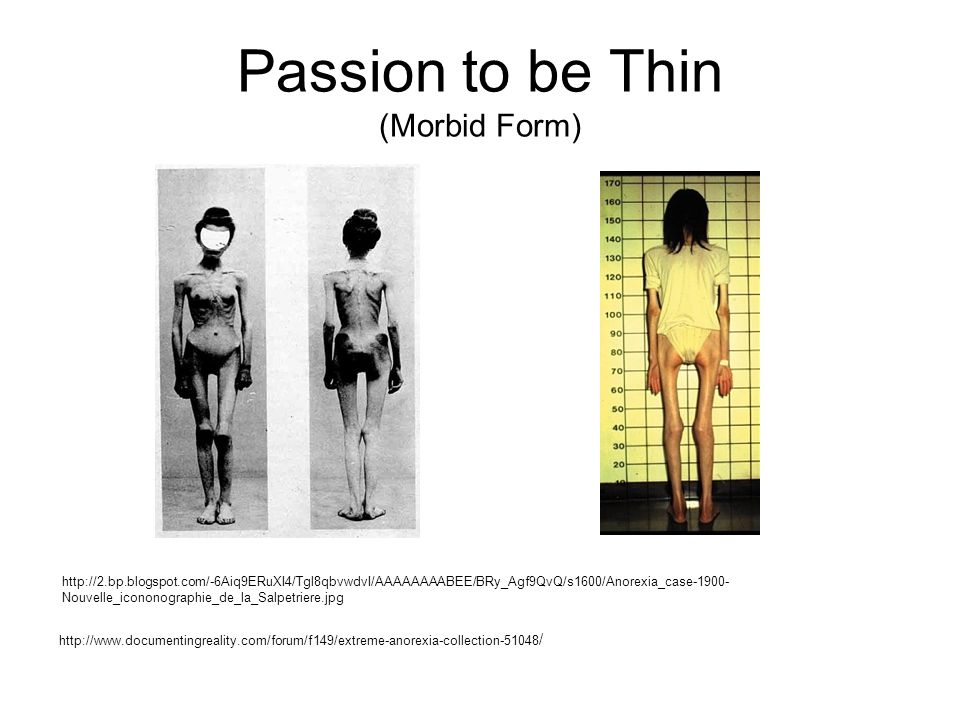 Passion to be Thin (Morbid Form)