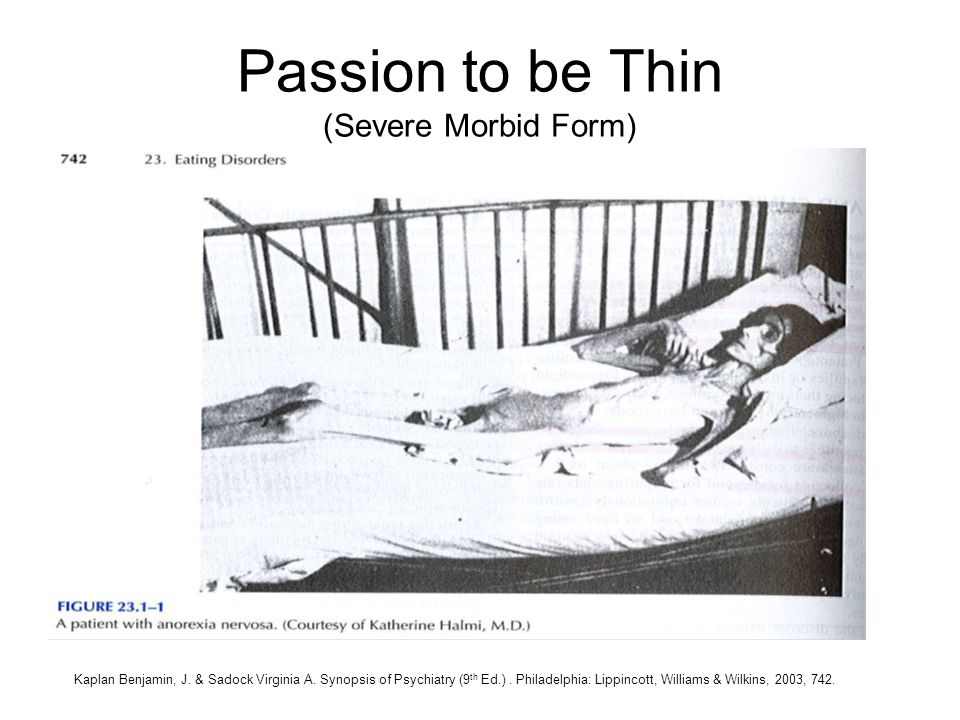 Passion to be Thin (Severe Morbid Form)