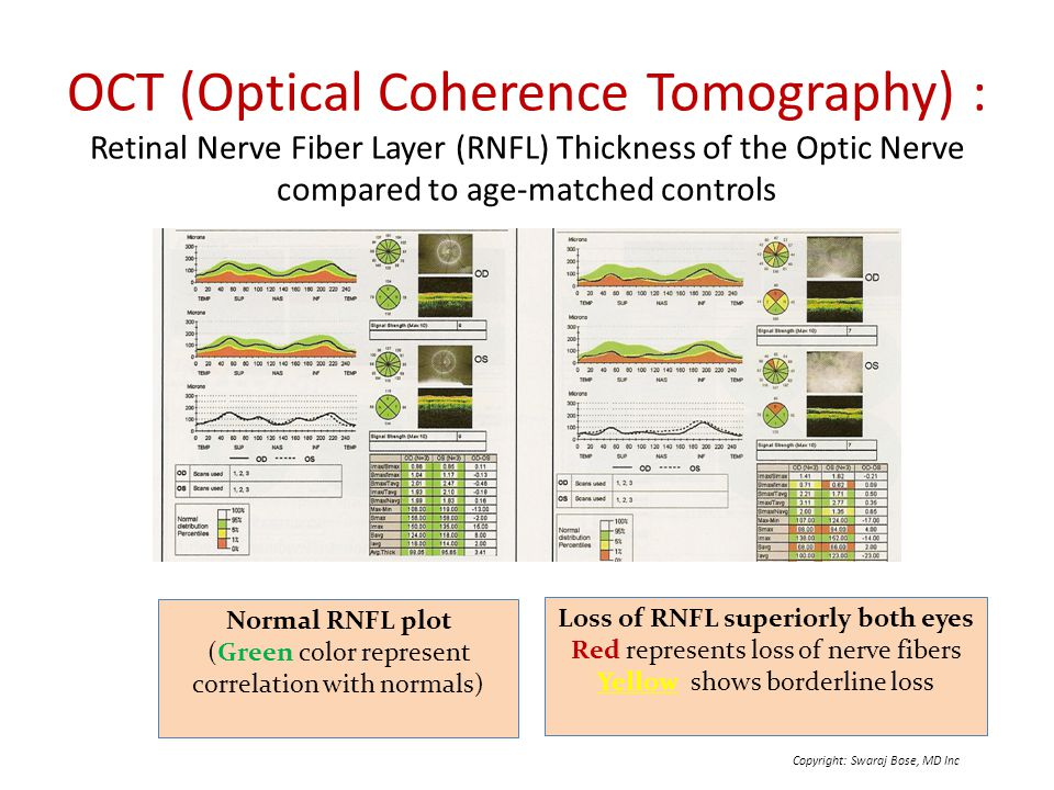 introduction to optical coherence tomography Optical coherence tomography (oct) is a method of imaging which uses near-infrared or optical light scattering to produce three dimensional images of a medium medical applications are of particular interest, since oct allows retinal and other tissues to be imaged with high resolution i introduction.
