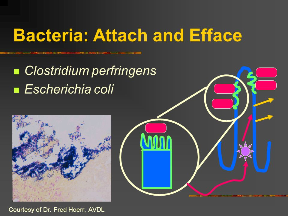 Bacteria: Attach and Efface