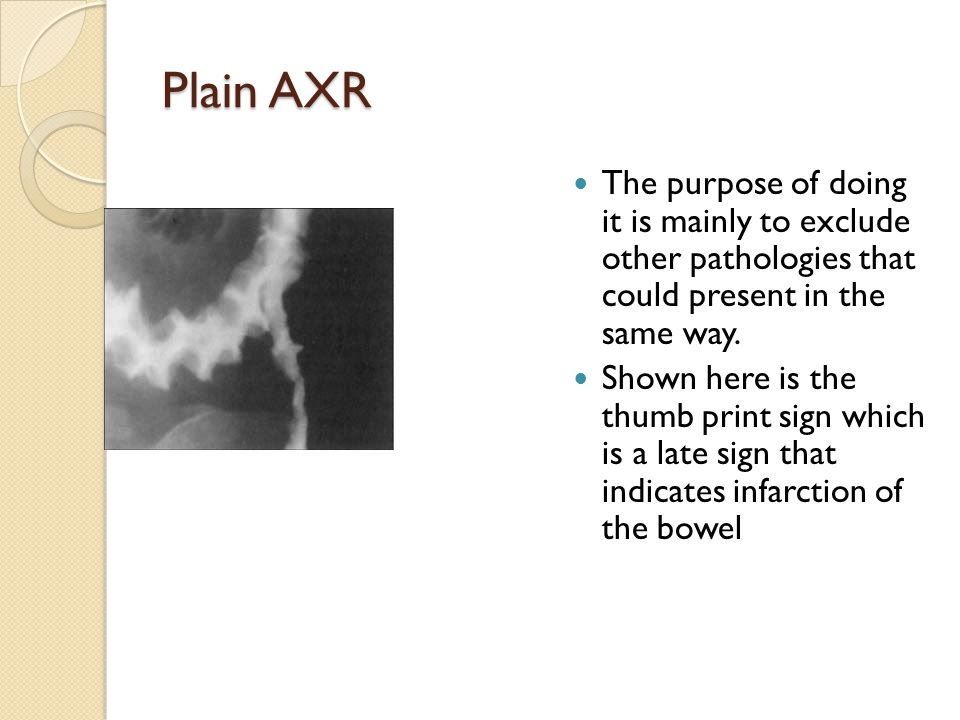 Plain AXR The purpose of doing it is mainly to exclude other pathologies that could present in the same way.