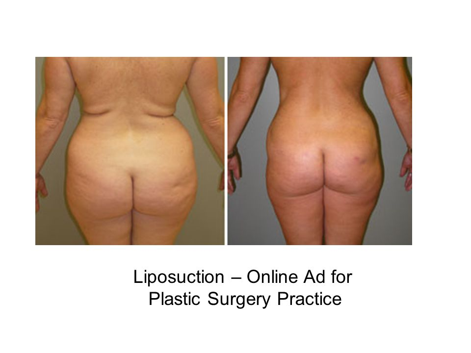 Liposuction – Online Ad for Plastic Surgery Practice